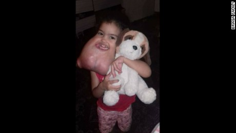 Doctors estimated that Melyssa Delgado Braga's tumor weighed 5 pounds.
