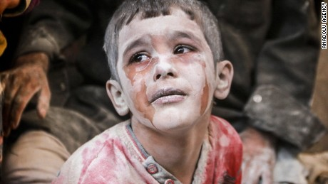 A wounded Syrian boy cries after an airstrike.