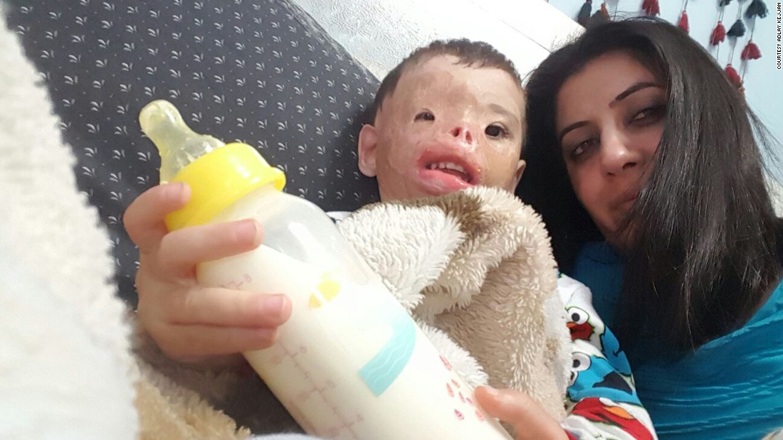 Since his first surgery, Dilbireen has been cared for by a Yazidi advocate, Adlay Kejjan, in Michigan.