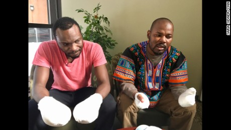 Two Ghanaians who suffered frostbite crossing the border from the United States into Canada.