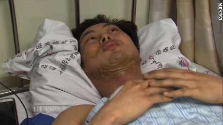 Firefighter Choi Kil-soo was hospitalized after he saved five people from a burning building.