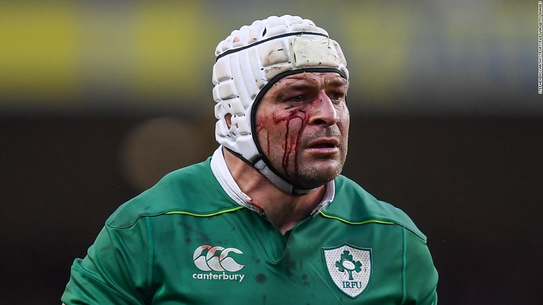 "Ireland's Rory Best is bloodied during a Six Nations match against England on Saturday, March 18. <a href=""http://www.cnn.com/2017/03/18/sport/rugby-england-ireland-grand-slam-world-record/"" target=""_blank"">Ireland won 13-9</a> to prevent England from winning its 19th consecutive Test match."