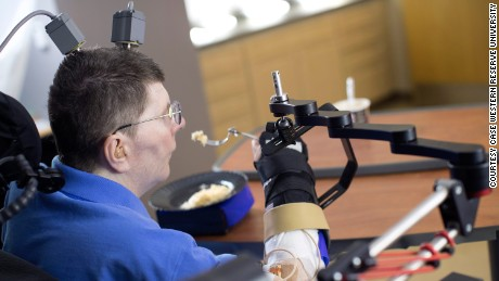 Paralyzed man uses experimental device to regain hand movements