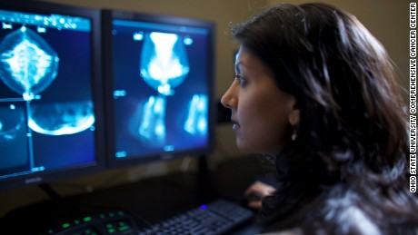 Doctors still divided on when women should start mammograms