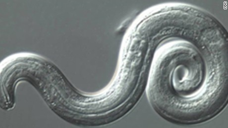Rare brain parasite cases spread in Hawaii