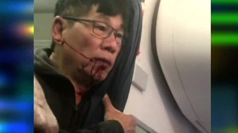 united flight passenger video after incident john klaassen intv ctn_00003430