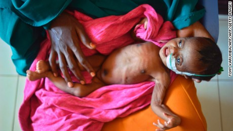 TOPSHOT - A severely malnourished child in the hands of her mother waits to be processed into a UNICEF- funded health programme catering to children displaced by drought, at the regional hospital in Baidoa town, the capital of Bay region of south-western Somalia where the spread of cholera has claimed tens of lives of IDP's compounding the impact of drought on March 15, 2017. The United Nations is warning of an unprecedented global crisis with famine already gripping parts of South Sudan and looming over Nigeria, Yemen and Somalia, threatening the lives of 20 million people. For Somalis, the memory of the 2011 famine which left a quarter of a million people dead is still fresh.  / AFP PHOTO / TONY KARUMBA        (Photo credit should read TONY KARUMBA/AFP/Getty Images)