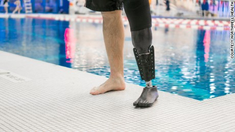 The Fin attaches to a standard prosthetic, allowing the swimmer to enter and exit the water without changing prosthetics.