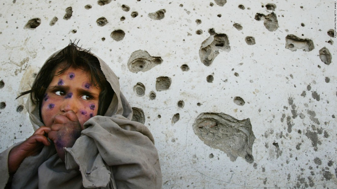 Mohboba, 7, stands near a bullet-ridden wall in Kabul as she waits to be seen at a health clinic on March 1, 2002. She had a skin ailment that plagued many poverty-stricken children in Afghanistan.