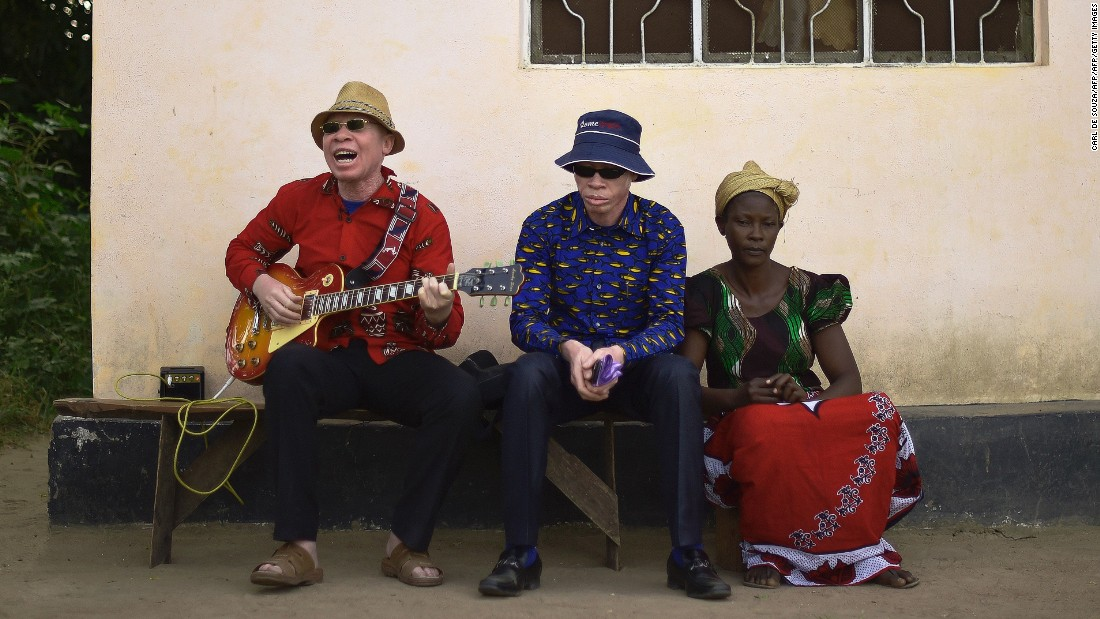 Albino singer King Shube plays a guitar on Ukerewe, 2016.  King Shube is an exception among the island's albino community. Many were actively discouraged from singing or banned according to music producer Ian Brennan, who visited the island and recorded sessions with locals in summer last year.