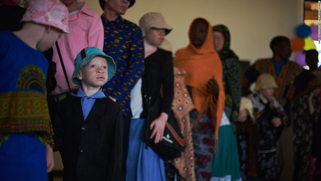 An albino boy queues for a lunch break at a clinic run by an NGO. Many of the first albinos to live on Ukerewe were taken there and abandoned by their families as children or fled from violence they had faced on the mainland. Ukerewe island is now seen as a safer place for albinos to live and integrate.