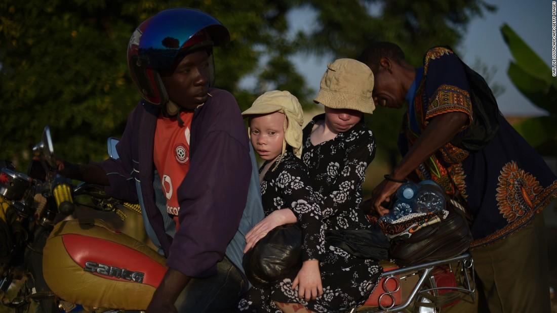 Two young sisters with albinism sit on a motorbike on Ukerewe. The island's reputation as a community in which those with albinism are greater integrated with those without it, has led some parents to relocate with their children.
