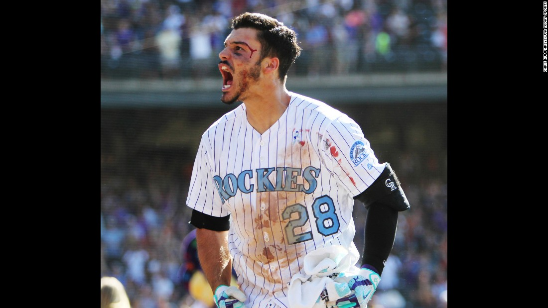 Colorado's Nolan Arenado celebrates after hitting a home run to beat San Francisco on Sunday, June 18. He was accidentally bloodied while celebrating with his teammates at home plate. The home run also completed the first cycle of Arenado's career.