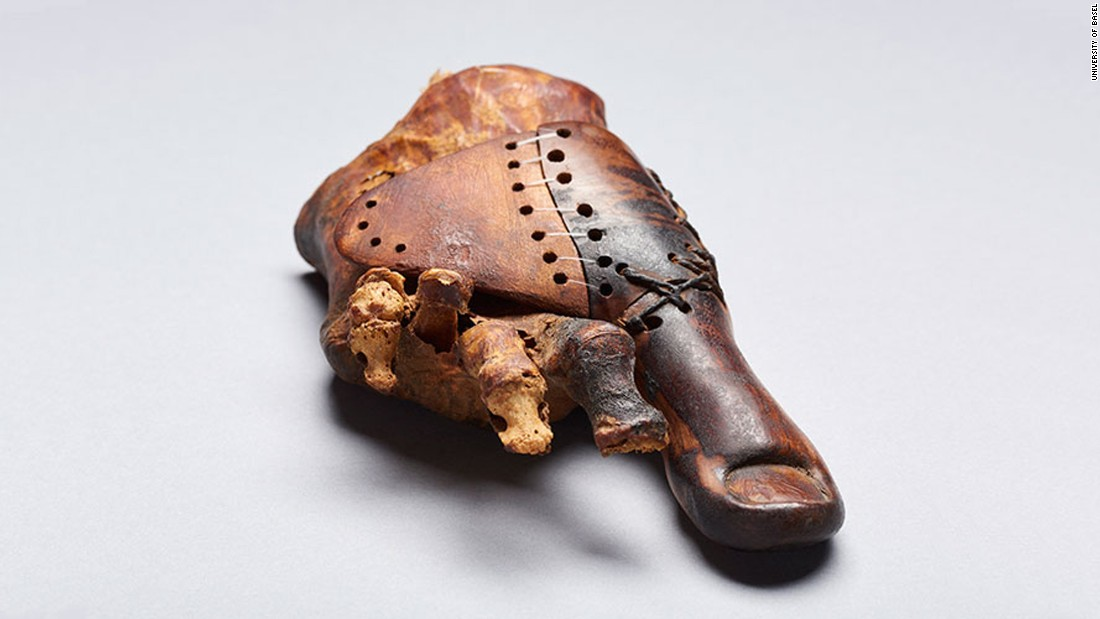"This prosthetic device was made for a priest's daughter who had to have her right big toe amputated 3,000 years ago. This <a href=""http://www.cnn.com/2017/06/22/health/ancient-egypt-wooden-toe-prosthetic-trnd/index.html"">surprisingly lifelike toe</a> was made to look natural by a skilled artisan who wanted to maintain the aesthetic as well as mobility during the Early Iron Age. It was designed to be worn with sandals, the footwear of choice at the time."