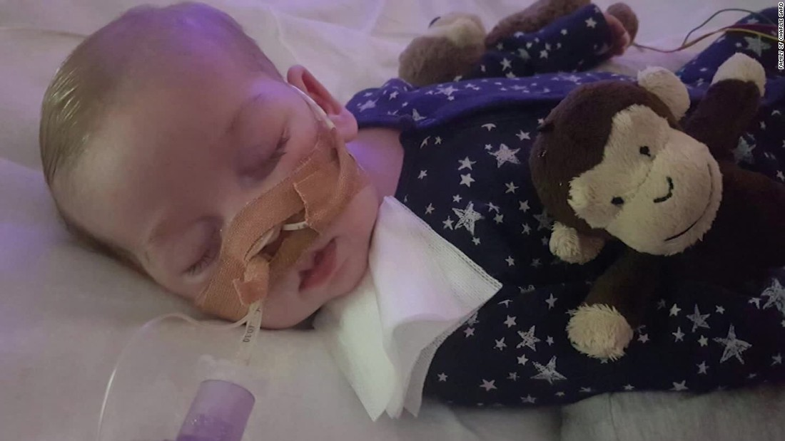 What Charlie Gard case teaches us about life and death