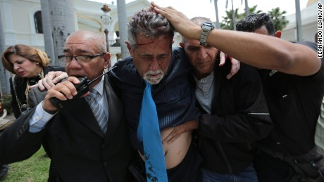Opposition lawmaker Americo De Grazia is led away by bodyguards and a National Assembly employee after he was injured by government supporters.