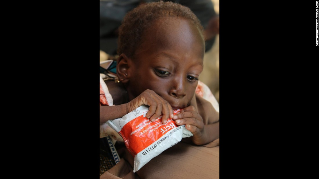 A malnourished child eats therapeutic food in Nigeria as part of an appetite test, an important step in making sure a child is willing and able to eat in order to recover.
