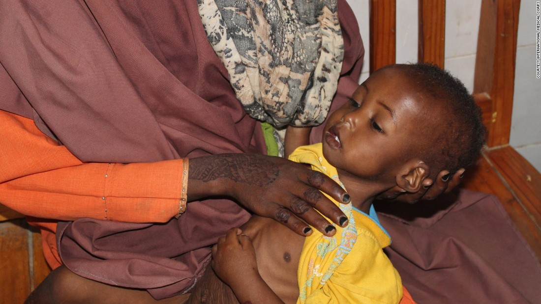 A mother in Somalia holds her severely malnourished child. The woman almost lost her third child to starvation before International Medical Corps stepped in and brought the child to a nearby hospital.