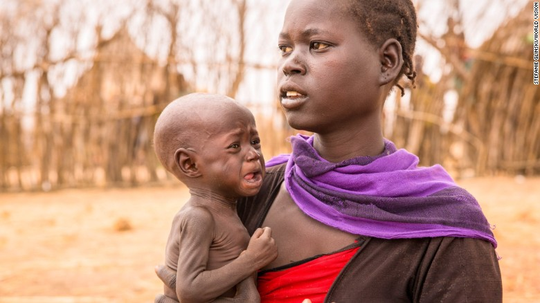 Adele Bol walked for over three hours to get to the food distribution with her 10 month old daughter Akir. Adele hast two other children at home who are similarly malnourished.