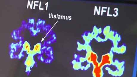 cte study 99 percent brains dead nfl players gupta lklv_00001325.jpg