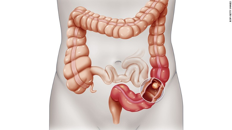 Colorectal cancer: What you need to know