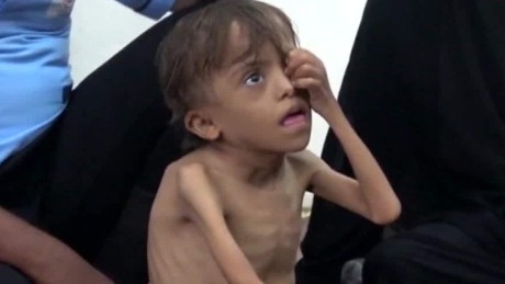 UN: Thousands of children are at risk in Yemen