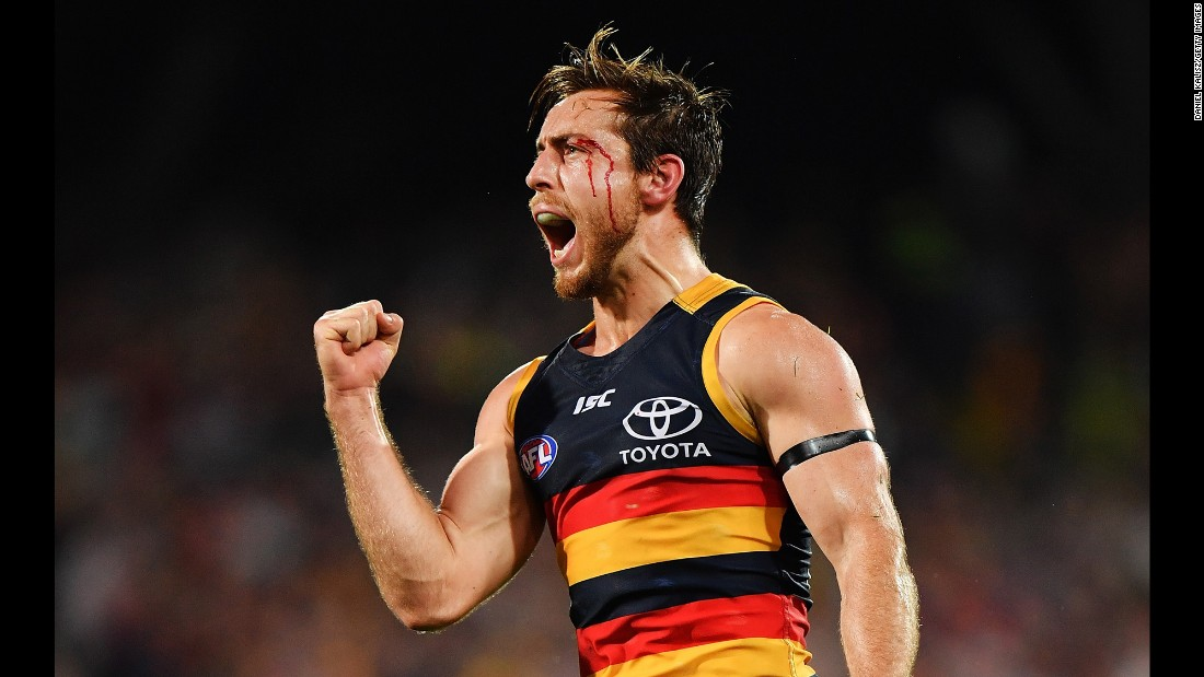 A bloodied Richard Douglas celebrates after kicking a goal during an Australian Football League match on Thursday, September 7. Douglas and the Adelaide Crows defeated the Greater Western Sydney Giants to clinch a spot in the AFL's preliminary finals.