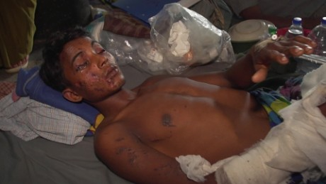 Children among injured in Rohingya attacks