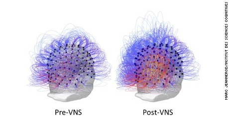 EEG images show an increase of information sharing across the brain, as evidenced by the yellow and orange colors, following vagus nerve stimulation.