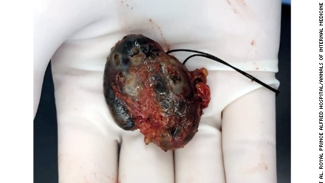 The lymph node that was removed from the woman's armpit.