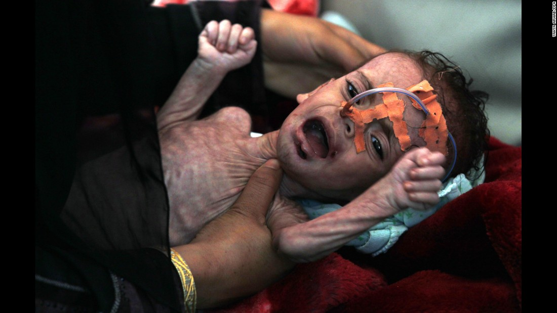 "A malnourished child receives treatment in Sanaa, Yemen, on Wednesday, October 4. The Saudi-led military campaign against Yemen's Houthi rebels <a href=""http://www.cnn.com/2017/09/07/middleeast/yemeni-girl-viral-photo/index.html"" target=""_blank"">has prompted a string of humanitarian crises.</a> According to UNICEF, a child dies every 10 minutes in Yemen from preventable causes such as diarrhea, breathing infections and malnutrition."