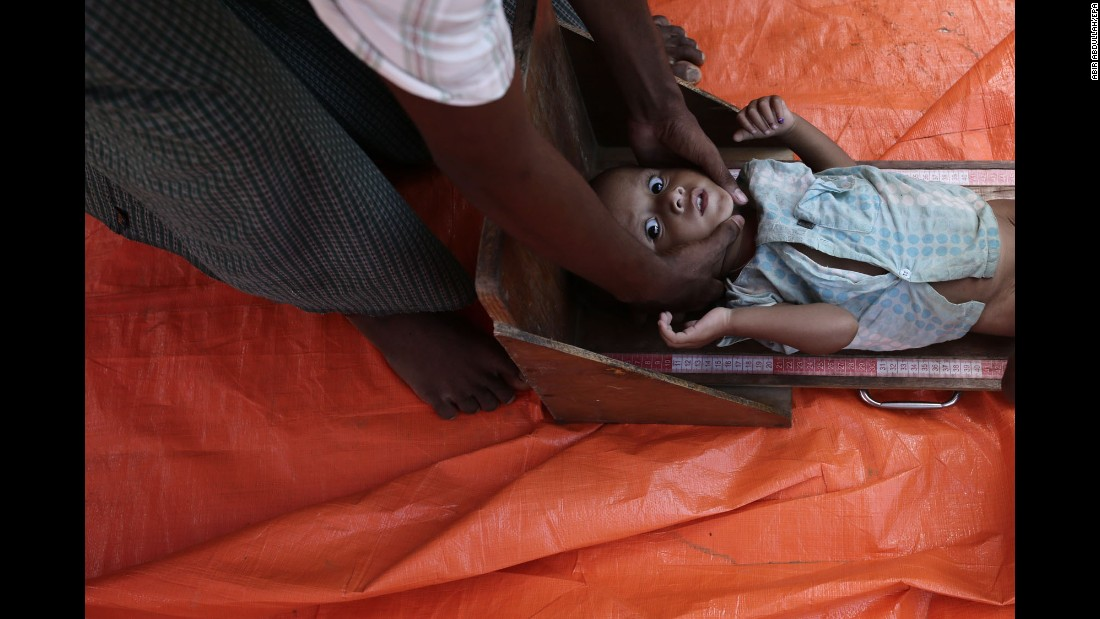 "A health worker measures the height of a malnourished child near a camp in Palongkhali, Bangladesh, on Wednesday, October 11. <a href=""http://www.cnn.com/2017/09/28/asia/myanmar-un-security-council/index.html"" target=""_blank"">More than 500,000 Rohingya Muslims have fled Myanmar</a> since late August, creating ""a humanitarian and human rights nightmare,"" according to Antonio Guterres, secretary-general of the United Nations."