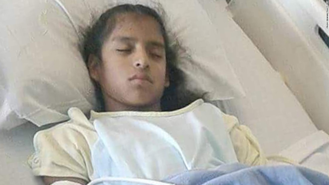 Undocumented special-needs girl in federal custody after emergency surgery