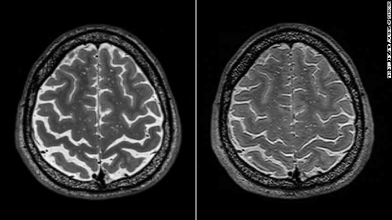 A long-term spaceflight astronaut's brain before, left, and after a mission.