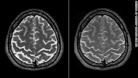 Axial T2-weighted images of the brain obtained before (Panel A, left ) and after (Panel B, right)) this astronaut had undergone long-duration spaceflight on the International Space Station (Participant 18). The astronaut presented with opticdisk edema and the visual impairment and intracranial pressure syndrome after spaceflight. Crowding of the sulci can be seen at the vertex. The gyrus (asterisk) is the precentral gyrus (primary motor cortex).