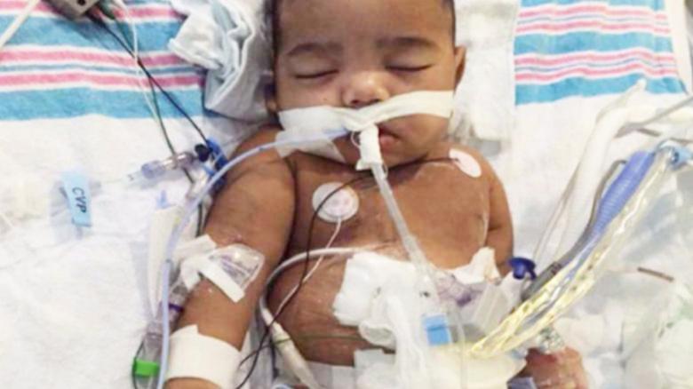 Baby AJ to receive new kidney