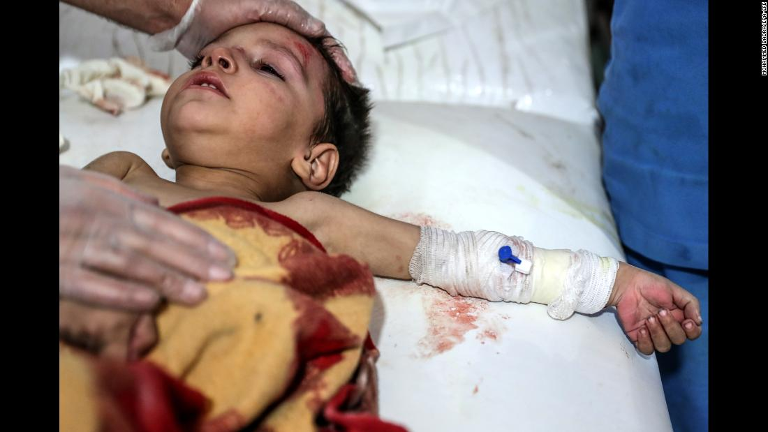 A boy receives medical attention after bombing in the rebel-held city of Douma, Syria, on Tuesday, November 14.