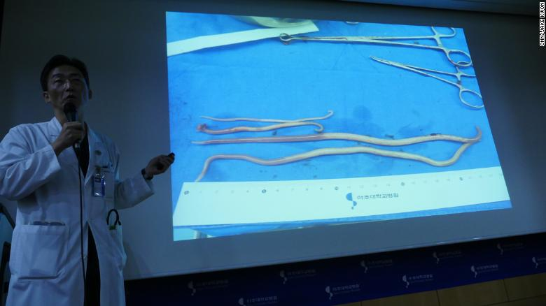 Slides show intestinal worms, some as long as 27 centimeters, removed from the defector.
