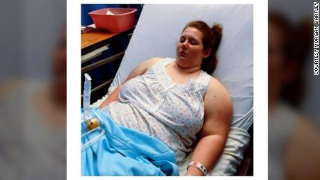At age 18, Bartley had a vertical sleeve gastrectomy to reduce the size of her stomach.