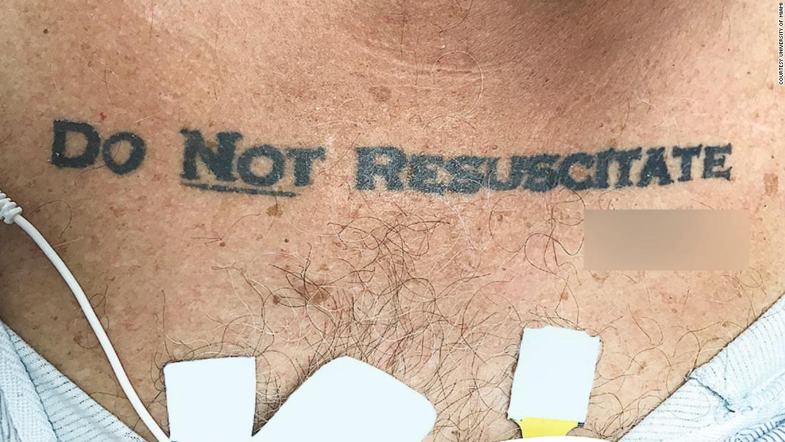 A man's tattoo left doctors debating whether to save his life