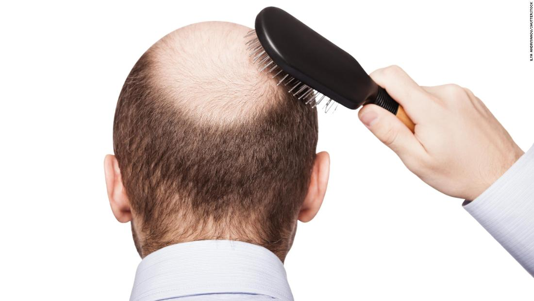 Balding, Premature Graying Tied To Higher Heart Disease Danger