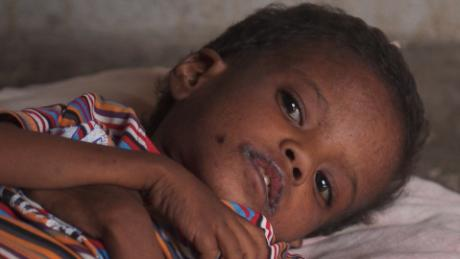 silent starvation yemen famine ward pkg_00020023