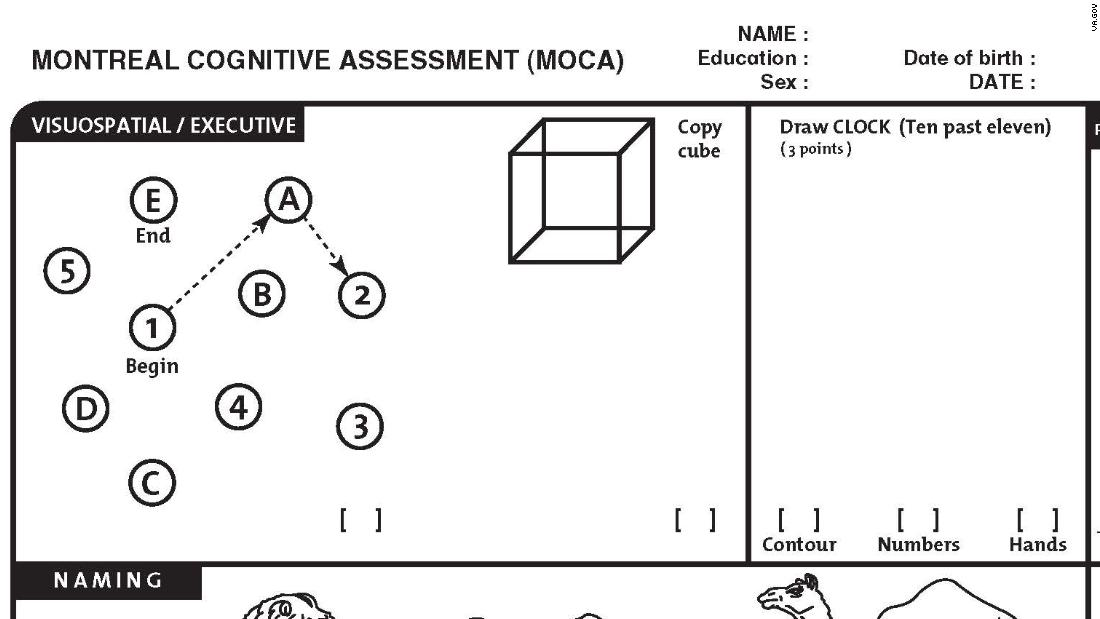 This is the cognitive test the president passed