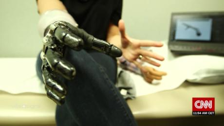 Vital Signs Mind-controlled prosthetics: the next wave of 'smart arms' C_00035327.jpg