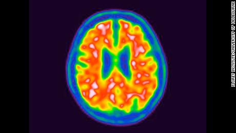 """Another promising Alzheimer's drug trial ends in failure: """"This one hurts"""""""