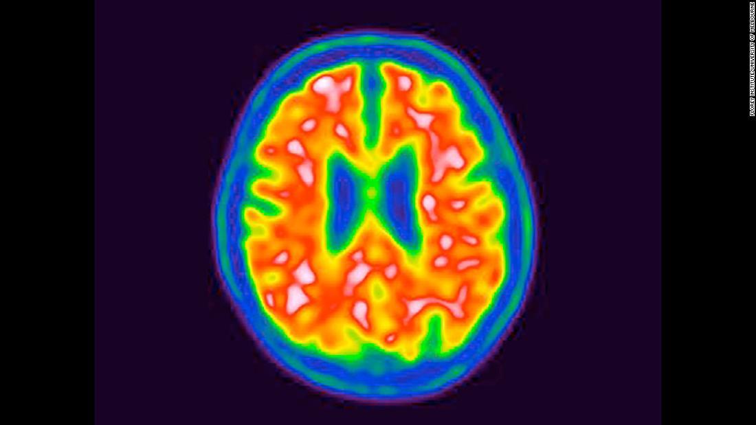 New approach to Alzheimer's fight: Diabetes drugs - CNN