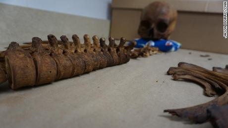 An unidentified skeleton in Kate Spradley's lab in San Marcos, Texas.