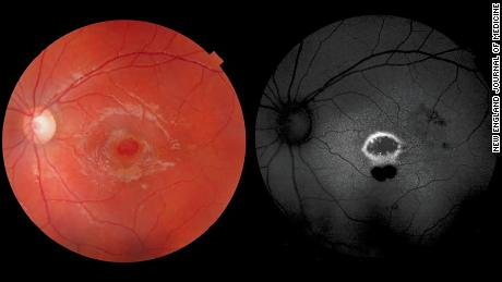 Laser pointer causes a hole in the retina of a boy's eye
