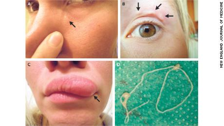 The Lump In This Woman's Face Turned Out to Be a Live Worm