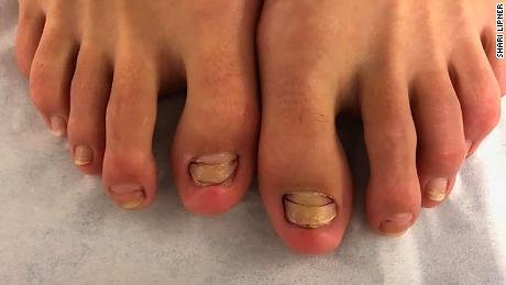 Six of the woman's toenails began to look abnormal in the months after a fish pedicure. This image appears in her case report